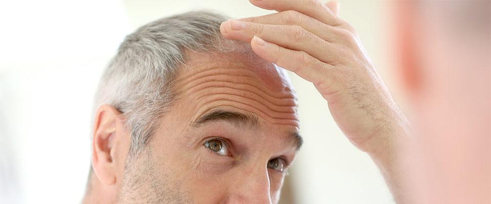 ¿Cómo puedo frenar la caída del pelo?